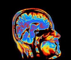 brightly lit scan of brain & head